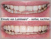 Professionelle Zahnreinigung Frankfurt